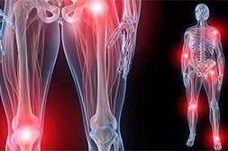 20Flex+ лечит все суставные болезни