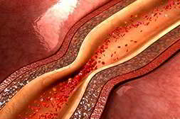 Гипертолайф от гипертонии очищает стенки сосудов