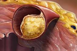 Благодаря Cardiocidin наслоения на сосудах устраняются за один курс лечения.