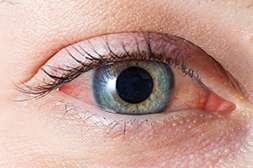 Препарат Perfect Vision способен остановить любую глазную патологию и вылечить её.