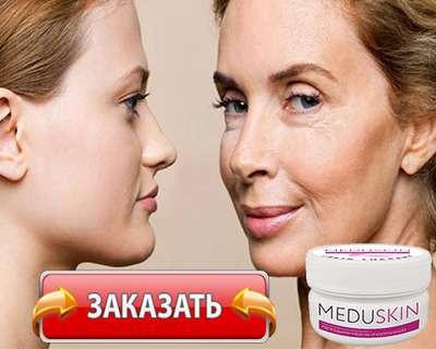 Заказать Meduskin на официальном сайте.