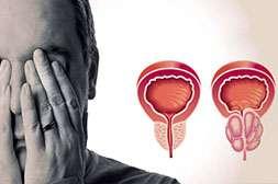 Prostonex снимает воспаление и предотвращает осложнения.