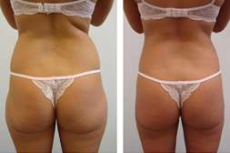 Комплекс Green Spa способствует устранению жировых отложений.