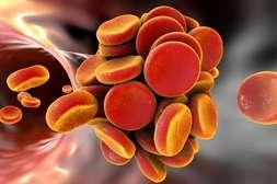 С лекарством Гипертонорм выводятся холестериновые бляшки.