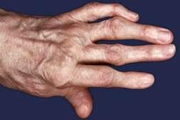 С кремом Артикулат устраняется воспалительный процесс.