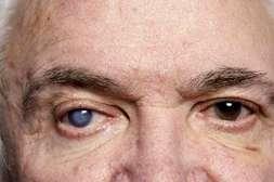 Капсулы VisuTabs предотвращают возникновение катаракты, глаукомы.