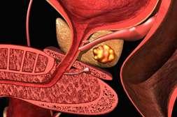 С таблетками Протектопрост устраняется риск развития аденомы, онкологии.